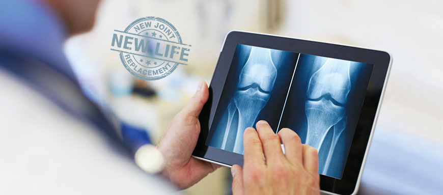 Total Joint Replacement Surgery